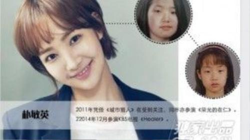 Park Min Young cũng công khai thừa nhận chuyện dao kéo. Cô đã cắt mí mắt, nâng mũi và gọt cằm.