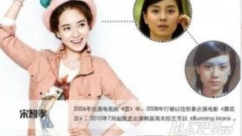 Song Ji Hyo có khuôn mặt tự nhiên khá xinh xắn, ngoại trừ phần cằm vuông vức. Nàng 'Ji ngố' được cho là đã can thiệp dao kéo để có khuôn mặt trái xoan xinh xắn như hiện tại.