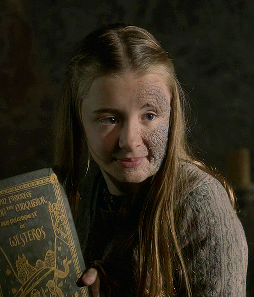 Shireen Baratheon.