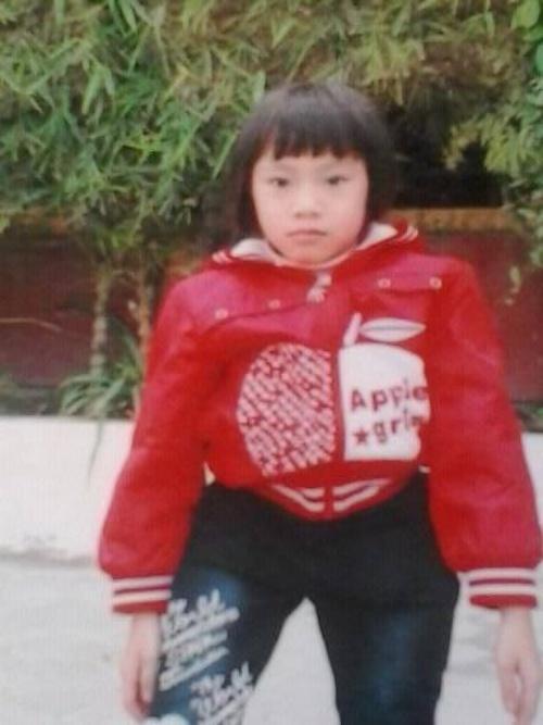 Đến năm 3 tuổi, cô bé không may mắn phát hiện mình bị xương thuỷ tinh.
