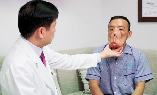 Anh Mến với gương mặt khác lạ, bác sĩ Tú Dung 'trần tình' Ảnh 3