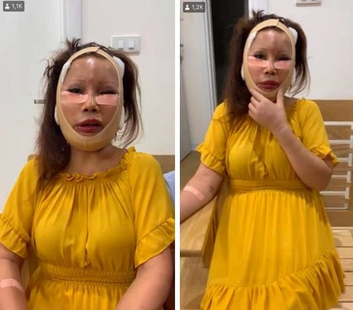 Không còn sưng phồng sau phẫu thuật thẩm mỹ, 'cô dâu 62 tuổi' khiến dân mạng ngạc nhiên với làn da này Ảnh 4