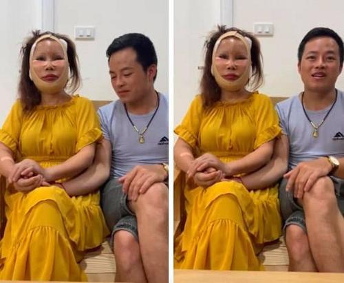 Không còn sưng phồng sau phẫu thuật thẩm mỹ, 'cô dâu 62 tuổi' khiến dân mạng ngạc nhiên với làn da này Ảnh 1
