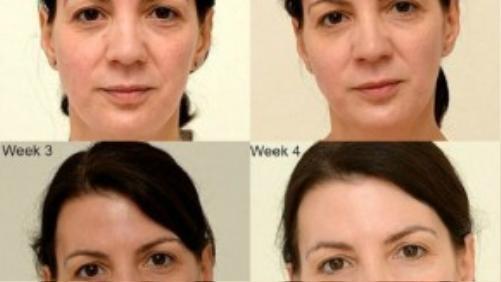 Sự thay đổi trên gương mặt của Sarah sau 28 ngày.