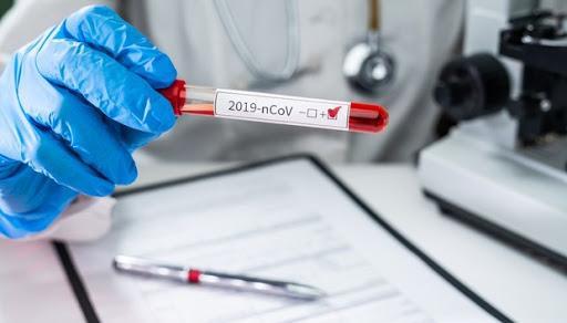 Việt Nam ghi nhận 141 ca nhiễm COVID-19. Ảnh minh họa