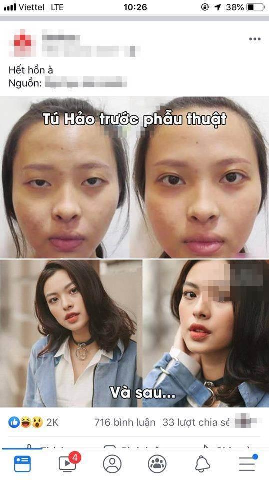 Quá trình lột xác thần kì của Tú Hảo gây chú ý cộng đồng mạng. Nhiều người cho rằng gương mặt của người đẹp ngày càng đơ cứng, không cảm xúc, không được tự nhiên như ngoại hình trước kia.