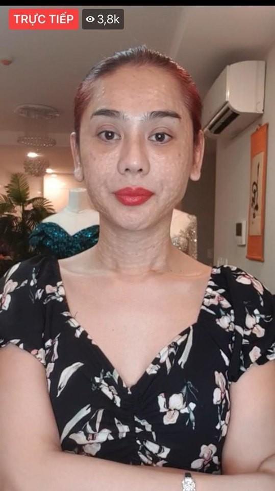 Gương mặt nhăn nheo, chi chít nốt sần của Lâm Khánh Chi trên sóng livestream khiến nhiều người phát hoảng