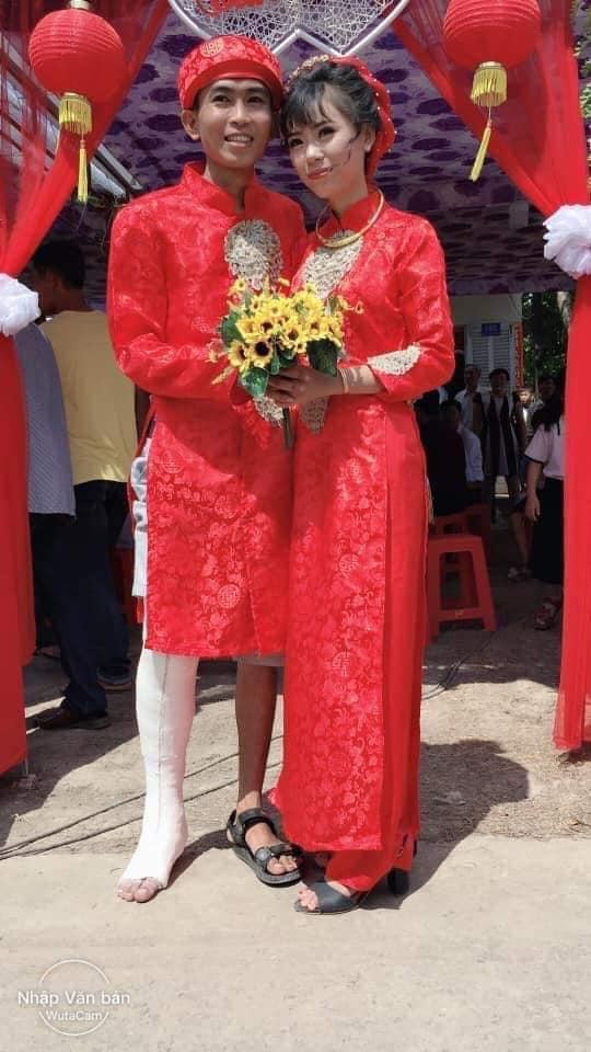 Sự cố tai nạn bị gãy chân khiến chú rể diện trang phục cưới hỏi hơi lạ mắt.