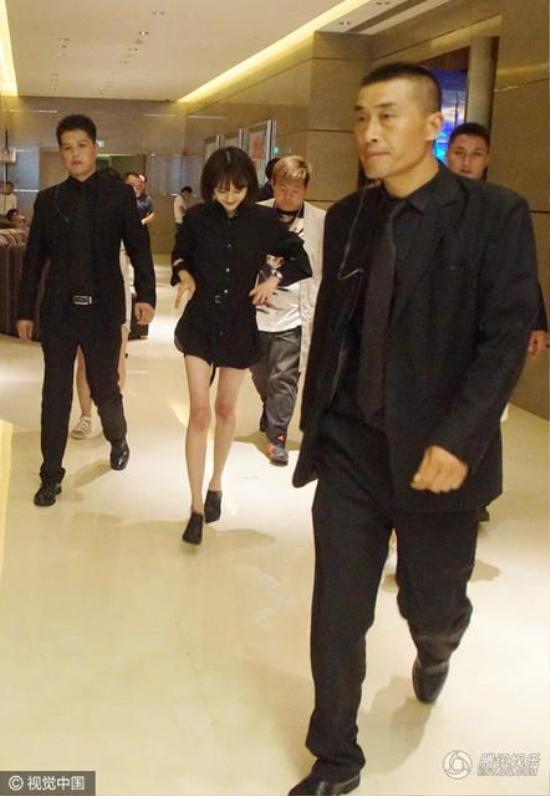 Nữ diễn viên diện một bộ váy liền màu đen, lộ ra đôi chân gầy gò đến đáng sợ.