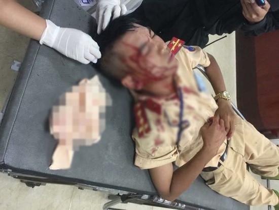 Đại úy Mai Hùng Sơn bị đánh chảy máu đầu sau vụ tấn công. Ảnh: báo Kiến thức