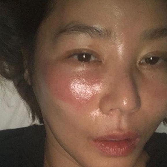 Kim Sung Ryung với hai hốc mắt hằn đỏ được cho là do mặt nạ dành cho mắt để lại