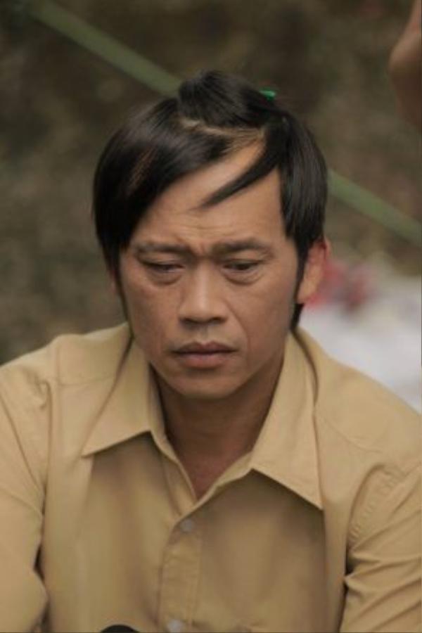 Gương mặt khắc khổ và diễn xuất nội tâm giúp Hoài Linh lấy nước mắt khán giả qua nhiều dự án sân khấu, điện ảnh.