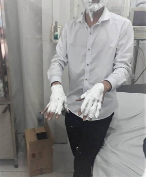 Hình ảnh nam sinh phải nhập viện cấp cứu vì bỏng nặng.