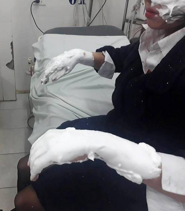 Nữ sinh viên bị bỏng nặng hai cánh tay và vùng mặt sau khi bóng bay galaxy phát nổ.