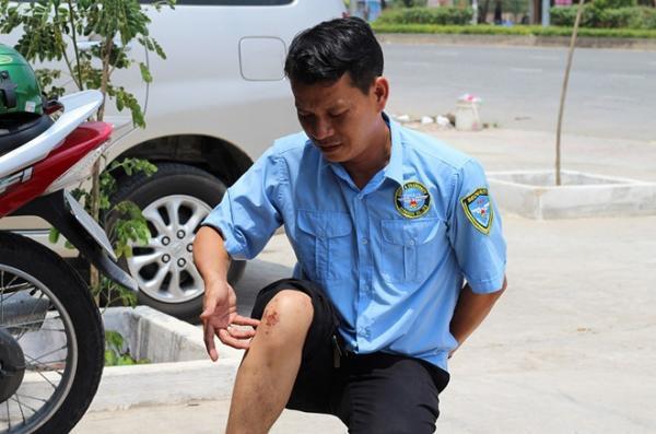 Bảo vệ công ty Võ Quốc Tuấn bị thương trong trận hỗn chiến.