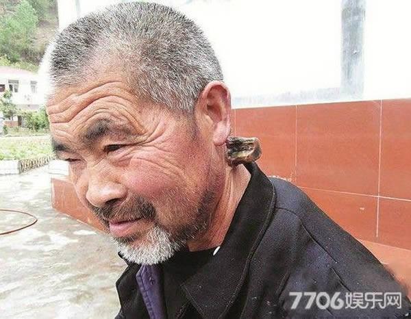 Một cụ ông khác cũng ở Trung Quốc lại mọc sừng ngay cổ.
