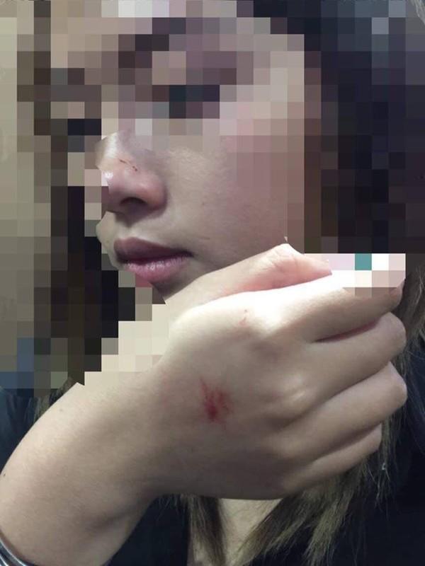 Hình ảnh chị V. bị xây xước trên mặt sau vụ việc.