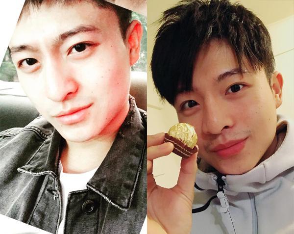 Bỗng một ngày, Harry Lu gây chấn động với nhan sắc trước và sau khi phẫu thuật thẩm mỹ. b Chiếc mũi bị lệch, đường nét gương mặt không còn thanh tú như ngày nào.