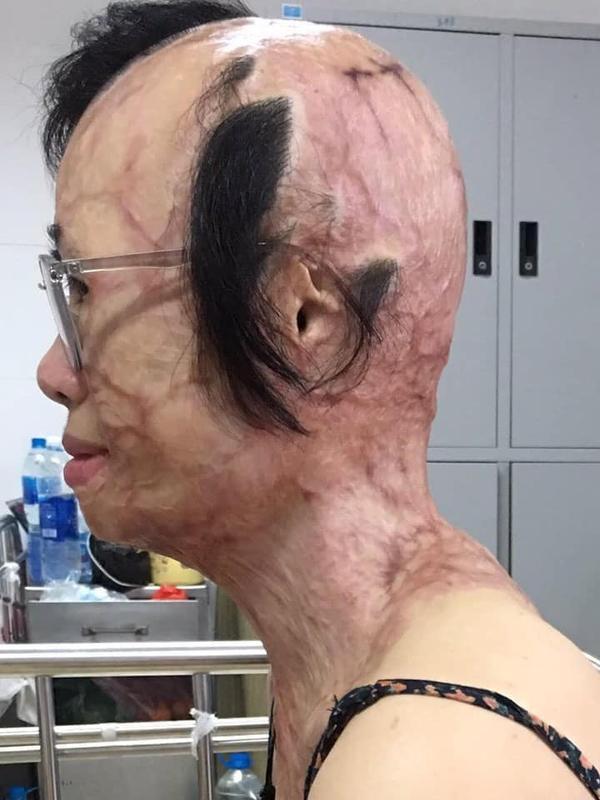 Toàn bộ khuôn mặt chị Huyền bị biến dạng sau khi bị tạt axit.