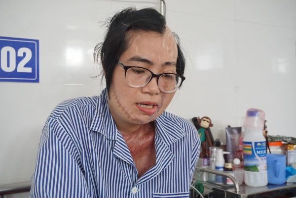 Chị Huyền đã trải qua 21 lần phẫu thuật phục hồi khuôn mặt, những nơi bỏng sâu.