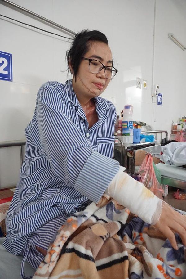 Chị Huyền đã trải qua chuỗi ngày đau đớn, chết lâm sàng 5 ngày giành giật sự sống.