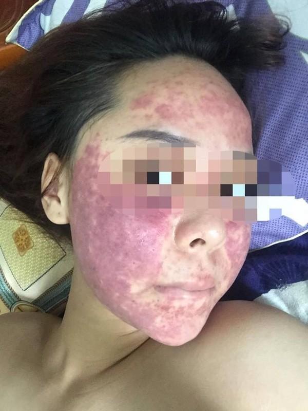 Chết khiếp với bức hình cô gái đắp mặt nạ rượu thuốc được tung hô như tiên dược ảnh 5