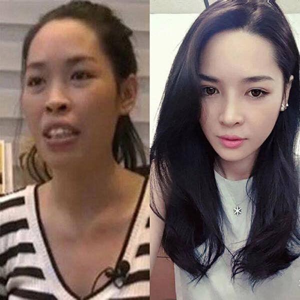 Vũ Thanh Quỳnh (sinh năm 1992) là biểu tượng thẩm mỹ thành công mà đến bây giờ mọi người vẫn nhớ đến, vẫn nhắc tên khi nói đến chuyện làm đẹp.