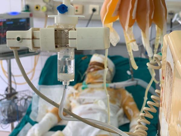 Trong khi cuộc sống quá khó khăn, còn chi phí điều trị tại bệnh viện cho các nạn nhân lại quá lớn.