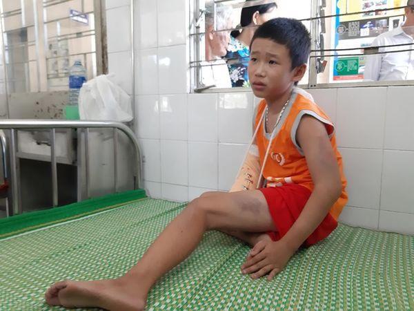 Cháu Linh bị đánh và bị cướp 1, 2 triệu đồng. Ảnh: báo Tiền Phong.