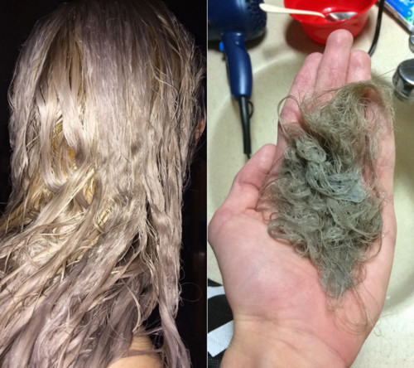 Tự tay dùng thuốc tẩy tóc tại nhà, cô gái hoảng hốt khi tóc rụng từng mảng trọc cả đầu ảnh 2