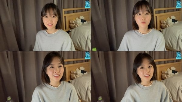 Park Bo Young announced a temporary interruption of all activities to recover from injury