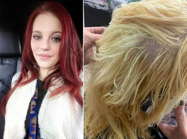 Tự tay dùng thuốc tẩy tóc tại nhà, cô gái hoảng hốt khi tóc rụng từng mảng trọc cả đầu ảnh 0