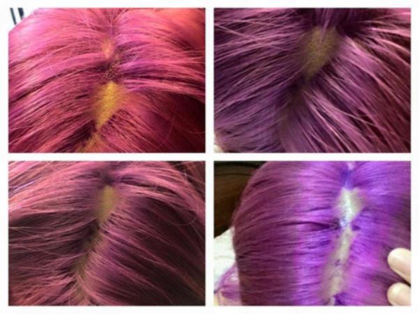 Tự tay dùng thuốc tẩy tóc tại nhà, cô gái hoảng hốt khi tóc rụng từng mảng trọc cả đầu ảnh 9