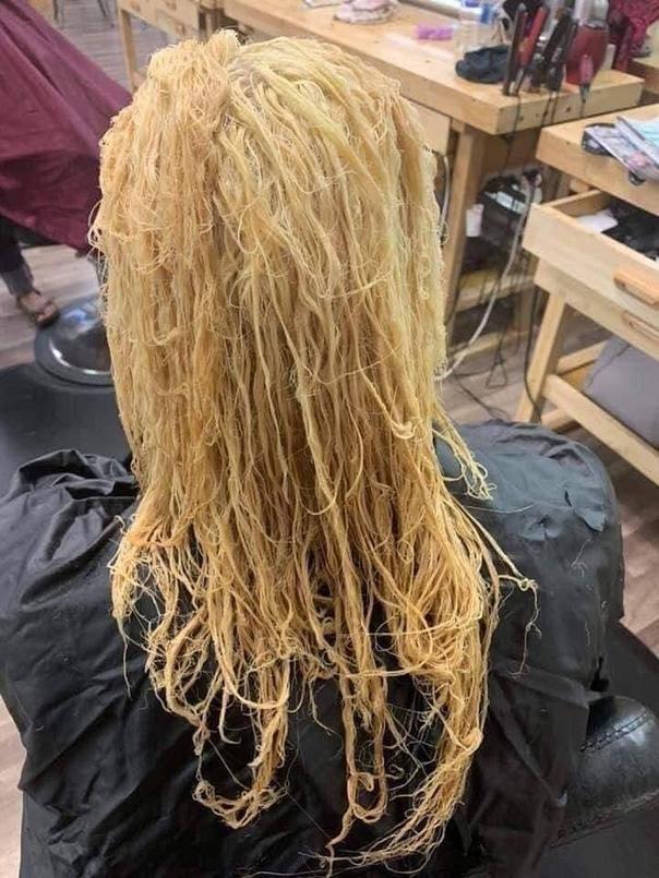 Tự tay dùng thuốc tẩy tóc tại nhà, cô gái hoảng hốt khi tóc rụng từng mảng trọc cả đầu ảnh 1