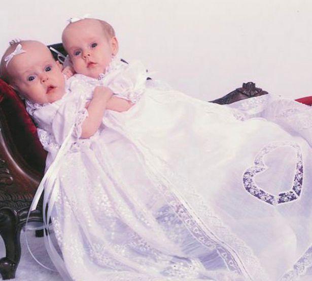 Cặp song sinh được sinh ra với hai chân, một xương chậu, chung bộ phận gan và thận (Ảnh: herrintwins /Instagram)