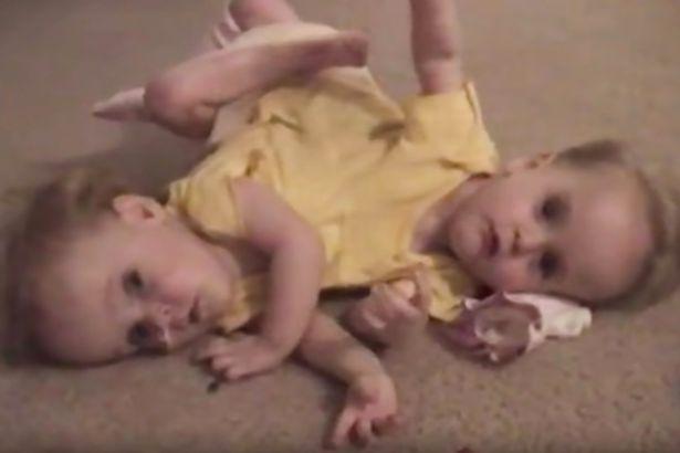 Cha mẹ của họ đã đưa ra quyết định khó khăn khi họ được cho biết nếu tách nhau ra, con gái họ sẽ không sống được lâu. (Ảnh: BBC Three /Youtube)
