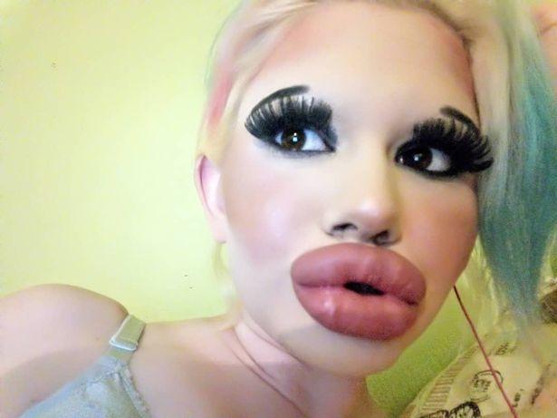 Andrea và đôi môi to vều như 2 miếng xúc xích