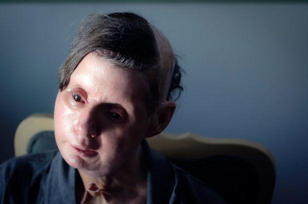 Charla đã cấy ghép mặt và tay.
