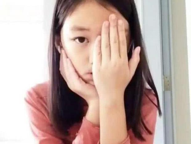Mặc dù cả bố và mẹ đều đã ly hôn nhưng Lý Yên vẫn được quan tâm và chăm sóc đầy đủ. Cô bé nhiều lần trải qua các cuộc phẫu thuật để có khuôn miệng bình thường