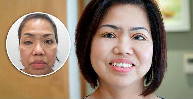 Chân dung người phụ nữ 30 năm tìm lại đôi mắt.