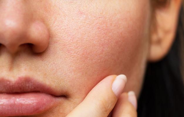 5 tips chăm sóc da láng mịn, tránh mụn khi đeo khẩu trang dài ngày chống Covid-19 ảnh 2