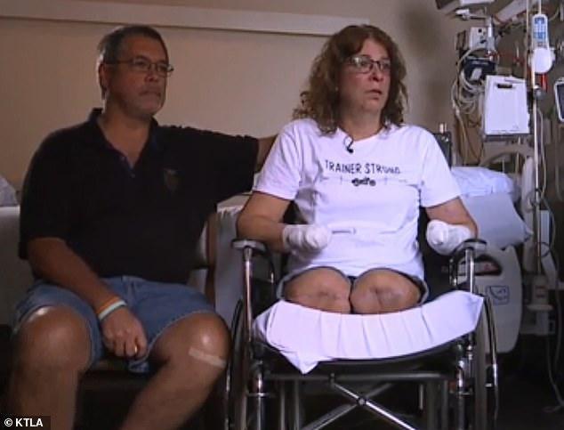Các bác sĩ phải cắt cụt tứ chi bà Trainer để cứu mạng sống của bà.