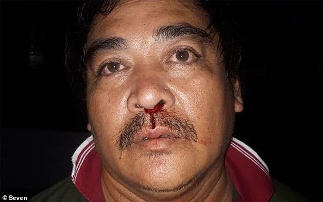 Nyoman Purda bị thương sau vụ tấn công vô cớ của Carr.