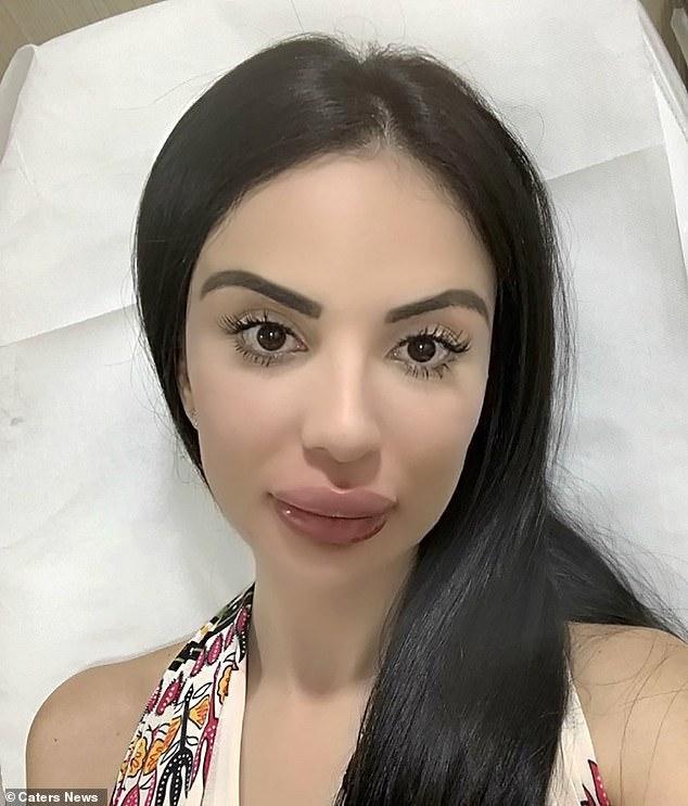 Sự cố tiêm môi hỏng đã làm cô nàng thức tỉnh, chấm dứt những cuộc phẫu thuật thẩm mỹ vô bổ chỉ để giống thần tượng Kim Kardashian.