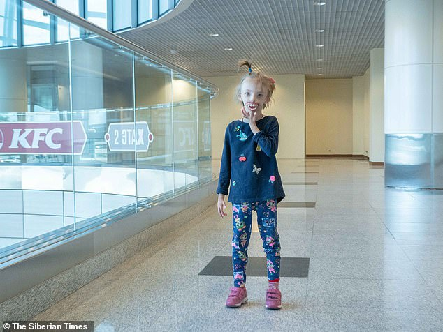 Vì bệnh hiếm nên bé gái phải mang theo gương mặt khuyết một nửa dưới suốt 6 năm qua.