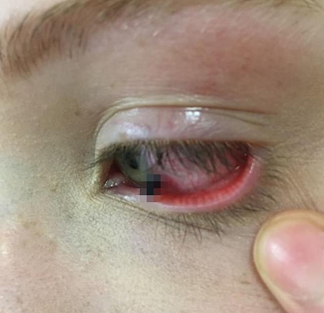 Mảnh chì kẹt lại trong mắt cô bé