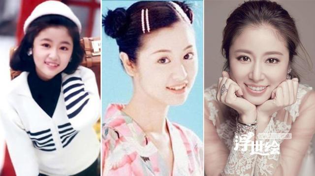 Lâm Tâm Như trước khi chưa sửa răng cũng đã rất xinh đẹp. Đôi má lúm đồng tiền và chiếc răng khểnh dễ thương làm cho khuôn mặt của cô càng ngây thơ hơn. Tuy nhiên, để phụ hợp với hình tượng trưởng thành, sang trọng sau này, nữ diễn viên đã bỏ đi những chiếc răng khểnh đáng yêu đó.