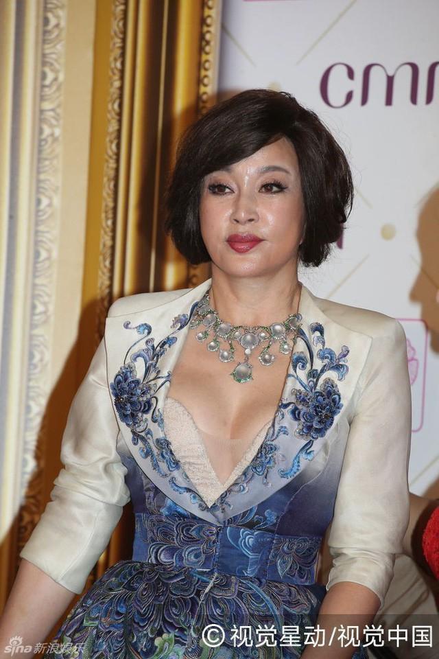 Lưu Hiểu Khánh ở độ tuổi 64: Khuôn mặt cứng đơ như người giả ảnh 6