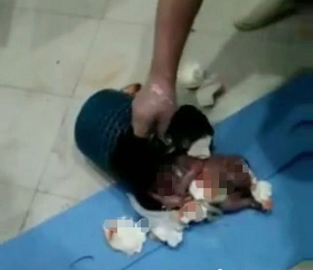 Đứa trẻ sơ sinh bị bỏ rơi trong thùng rác của bệnh viện.