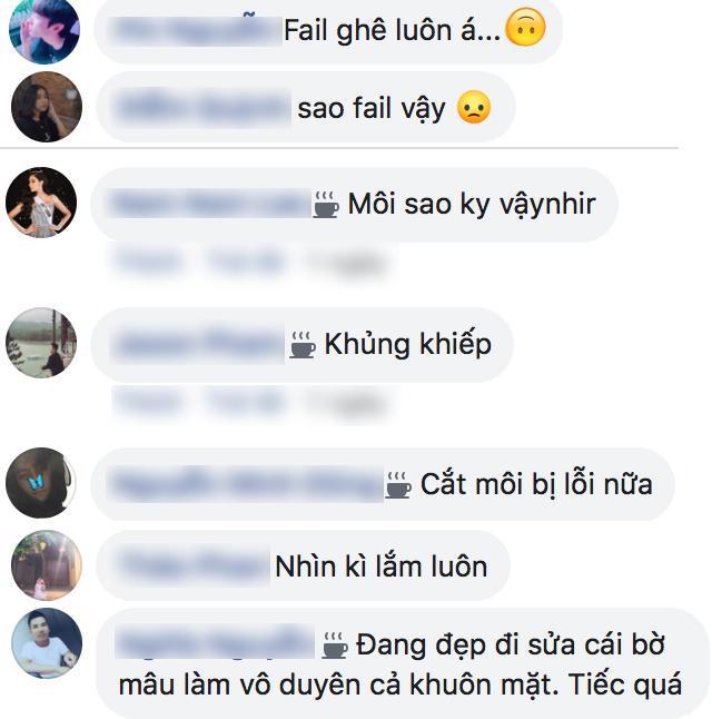 Fan Việt phản ứng trước chi tiết phẫu thuật lỗi của đại diện Philippines.